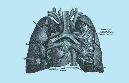 Malignant Pleural Mesothelioma Surgery Sydney Heart And Lung